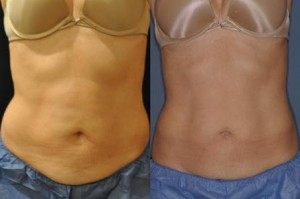 A client poses before CoolSculpting and eight weeks after.  Photo/submitted